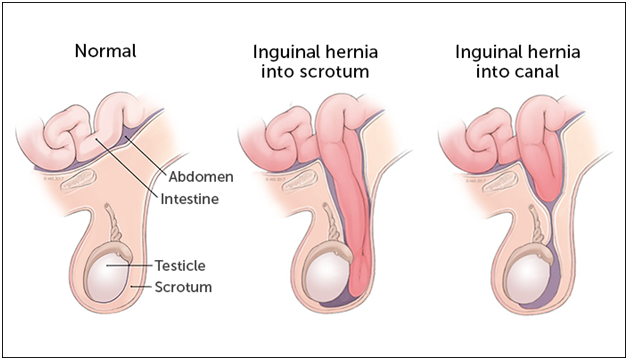 Hernia Treatment in Pune