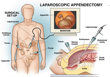 Laparoscopic Surgery in Pune